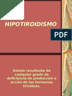 2 hipotiroidismo