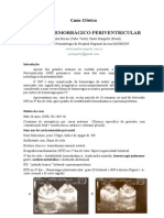Caso_clinico_infarto_hemorragico.doc