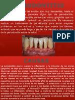 La periodontitis