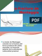 10.- Luxo-fractura de Monteggia