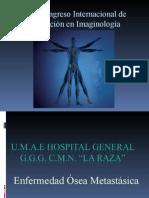Enfermedad Metastásicxa Ósea PPoint 97-2003