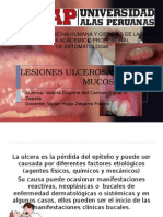 Lesiones Ulcerosas en La Mucosa Bucal