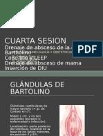 Sesion IV Absceso Bartholino