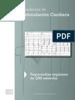 Cuadernos de Estimulacion Cardiaca
