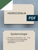 3 HIDROCEFALIA