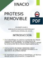 Terminación en Prótesis Removible
