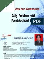 AdvancedECG_PacedECG_EdoTondas