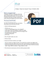 nasogastric-ng-tube-how-to-insert-your-childs-ng-tube english  1   1