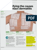 Identifying the Cause of Contact Dermatitis