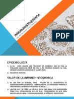 Inmunohistoquímica en Cáncer de Próstata y Oncocitoma