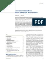 2006 Lesiones Traumáticas de Los Meniscos de La Rodilla