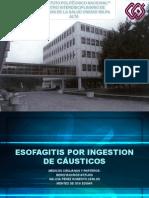 Esofagitis Por Ingestion de Causticos