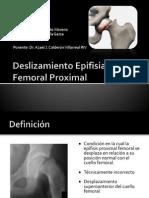 DeDeslizamiento epifisiario o epifisiolisisslizamientoEpifisiarioFemoralProximal