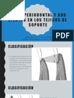 Bolsa Periodontal y Sus Efectos en Los Tejidos de Soporte Presentacion Perio Jueves