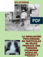 Silicosis y TB