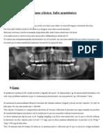 Fallo anestésico maxilar superior