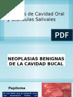 Tumores de Cavidad Oral y Glandulas Salivales