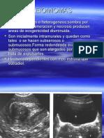 UTERO y estudio ginecologico