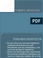 Tumores Benignos de Higado