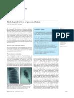 Pneumothorax Radiologic Review