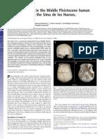 Craniosynostosis in the Middle Pleistocene Human Cranium 14 From the Sima de Los Huesos, Atapuerca, Spain