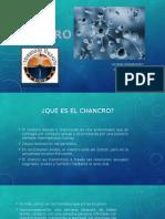 elchancro-140813140113-phpapp01