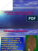 Carcinoma Polmonare