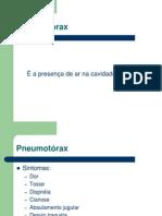 Resumo Pneumotorax e Drenagem Pleural