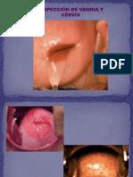 Ginecologia - Clase 04 y 05 - Semiologia Ginecologica Parte 2 y Citologia - 13 y 20may15 DIAPO VIEJA