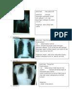 Rangkuman Foto Ujian Radiologi