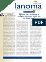 Artigo Melanoma