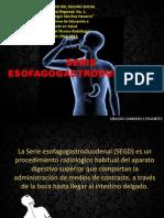 Serie Esofago Gastro Duodenal