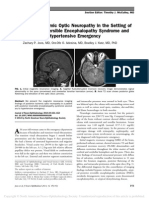 POSTERIOR ISCHEMIC OPTIC NEUROPATHY