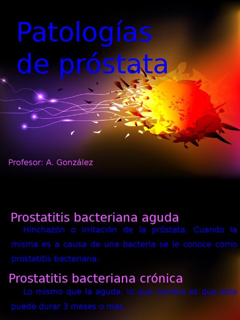 un virus puede causar prostatitis