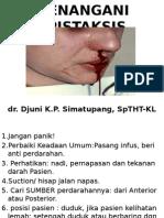 Epistaxis 1 4