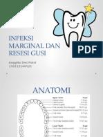 Infeksi Marginal, Resesi Gusi