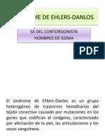 Sindrome de Ehlers-danlos