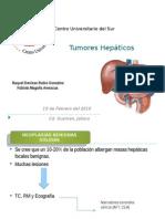 Tumores hepaticos