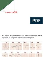 Clase 4 de EKG Curso Electivo
