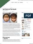 Top 10 Herbs for Hair Growth - My Health Tips