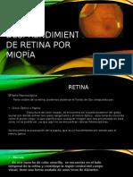 Desprendimiento de Retina por Miopía.pptx