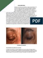 dispilemia aguda