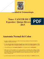 Cancer Al Colon