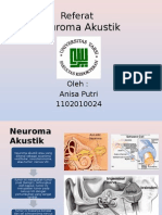 Neuroma Akustik