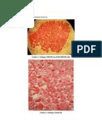 Kelenjar Tiroid&Paratiroid