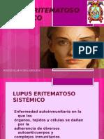 10.-lupus