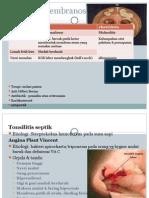 Tonsilitis Membranosa