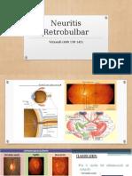 Neuritis Retrobulbar