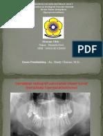 40.Hasmila Devi ~brown tumor (komplikasi hiperparatiroidisme)