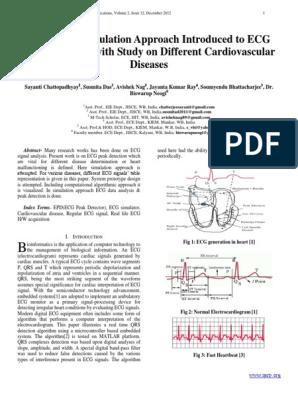 ECG Peak Detection | Electrocardiography | Heart